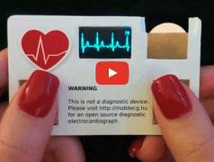 EKG-Gerät in Scheckkartengröße