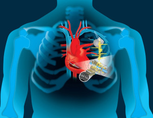 Beating heart charges implanted devices