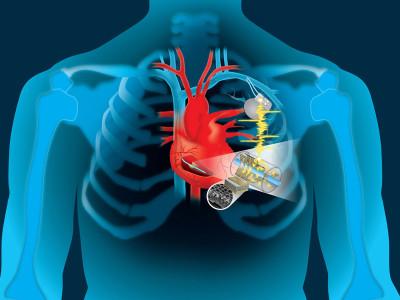 Herz versorgt Herzschrittmacher selbst