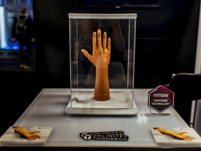 Armprothese aus dem 3D-Drucker