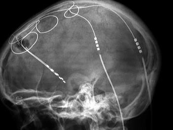 Wissenschaftler hacken Neurostimulator
