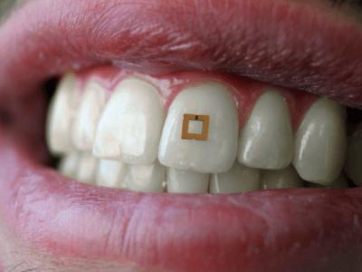 Zahnsensoren überwachen die Nahrungsaufnahme
