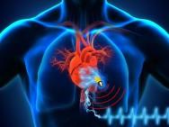 Der neue biologische Superkondensator kann die Grundlage dafür werden, dass die Lebensdauer von Herzschrittmachern und anderen Implantaten verlängert wird, vielleicht sogar ein Leben lang. (Bild: Islam Mosa/University of Connecticut und Maher El-Kady/UCLA