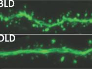 Gehirnaktivität bei normaler (oben) und gedimmter Beleuchtung (unten). Bild: Michigan State University.