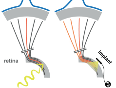 Déformation de l'image (en bleu) causée par la diffusion des courants de stimulation autour des électrodes de l'implant. D'après Probing the functional impact of sub-retinal prosthesis. Roux S., Matonti F., Dupont F., Hoffart L., Takerkart S., Picaud S.,