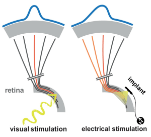 Deformation of the image (in  blue) caused by the diffusion of stimulation currents around the electrodes of the implant. From 'Probing the functional impact of sub-retinal prosthesis.' Roux S., Matonti F., Dupont F., Hoffart L., Takerkart S., Picaud S.,