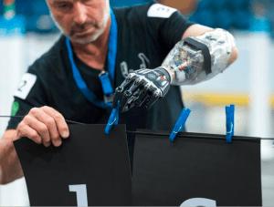 Unterarm-Prothese bei der Demonstration ihrer Fähigkeiten