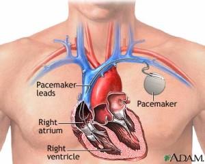 Un coeur en mouvement perpétuel