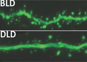 Hersenactiviteit bij normaal (boven) en gedempt licht (onder). Afbeelding: Michigan State University